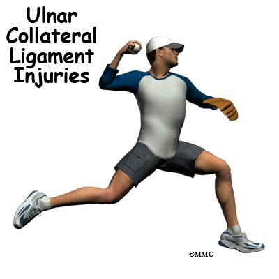 Ulnar Collateral Ligament Injuries   eOrthopod