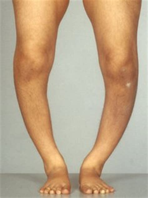 Rickets – Victorian Myth or Modern Reality? - Fitness
